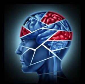 Acupuncture can treat post-concussion syndrome