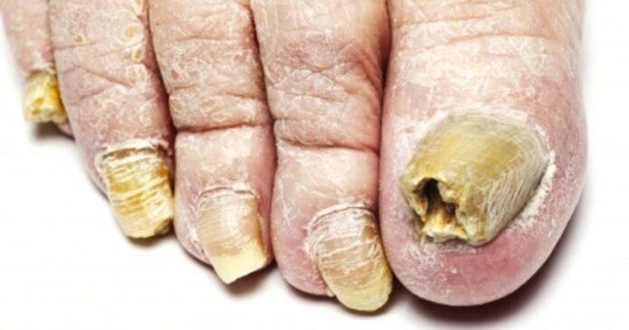 Acupuncture for Psoriatic Arthritis
