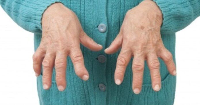 How Does Acupuncture for Rheumatoid Arthritis Work?