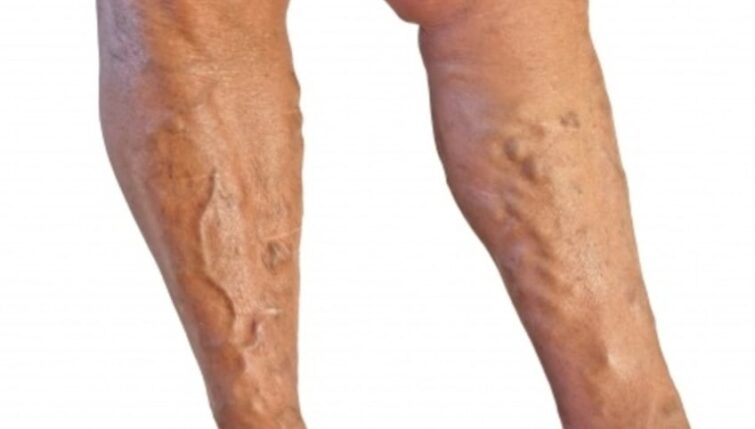Acupuncture can treat varicose veins