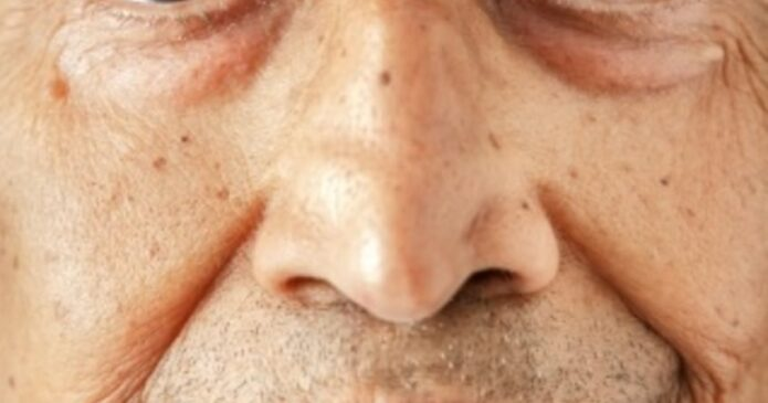 Post complication of Bell's palsy