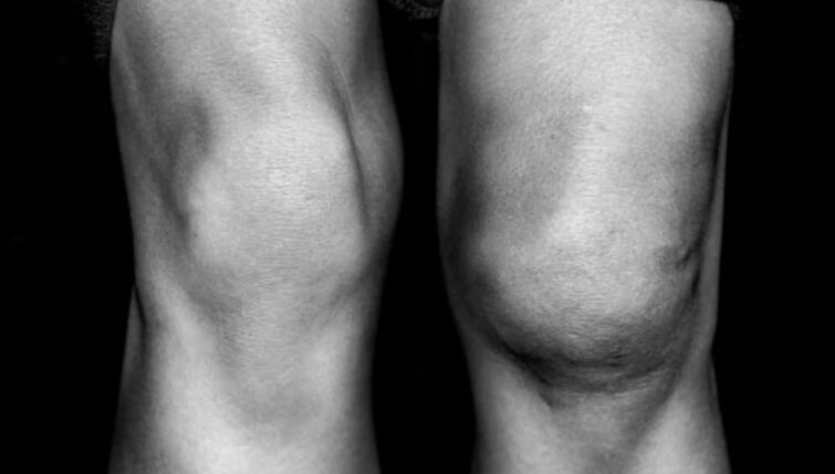Knee injuries can cause prepatellar bursitis