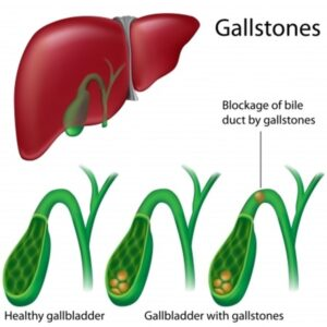 Acupuncture can help gallbladder disease