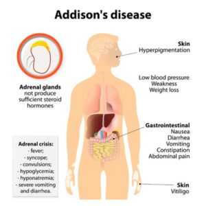 Acupuncture can help for Addison's Disease