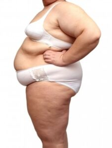 Acupuncture Proven to Help for Weight Loss