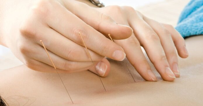 Acupuncture being performed for the spine