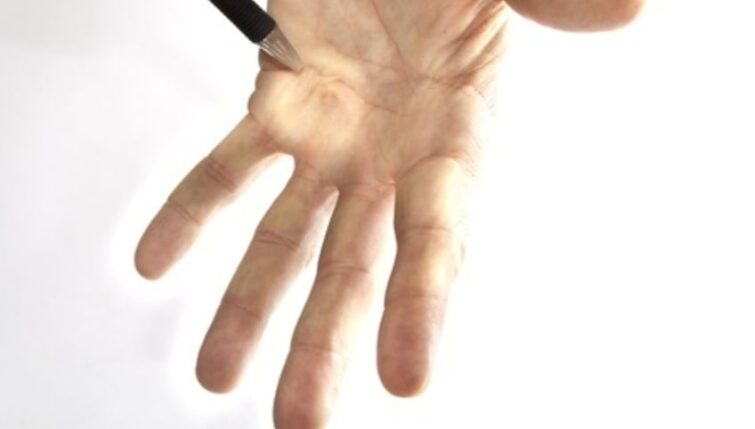 Acupuncture can help Dupuytren's Contracture
