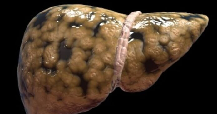 Acupuncture for Liver Disease