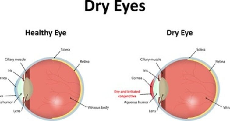 Acupuncture for Sicca (dry eyes) syndrome