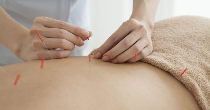 Acupuncture for Back Pain or Dangerous drugs