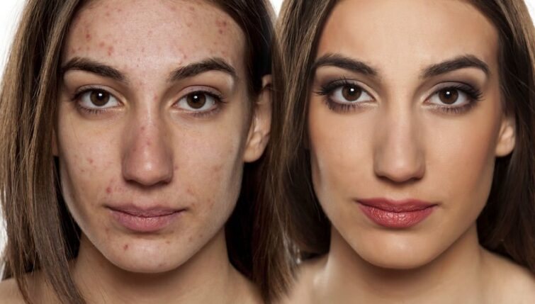 Acupuncture can be used to treat acne