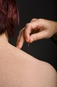 Acupuncture on shoulder