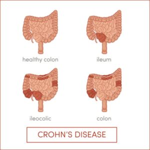 Acupuncture and Chinese herbs can be used for Crohn's disease