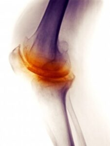Degenerative Arthritis of Knee