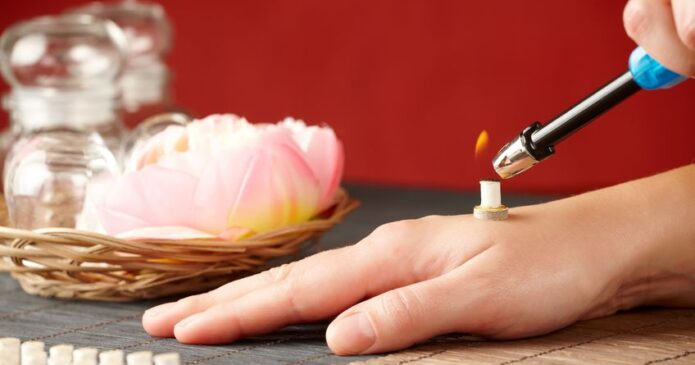 Direct moxibustion on wrist for carpal tunnel
