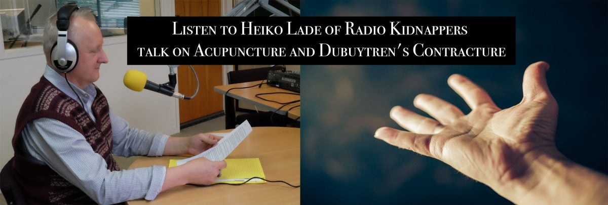 acupuncture treats Dubuytrens Contracture
