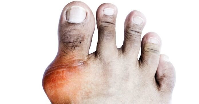 Acupuncture for Gout