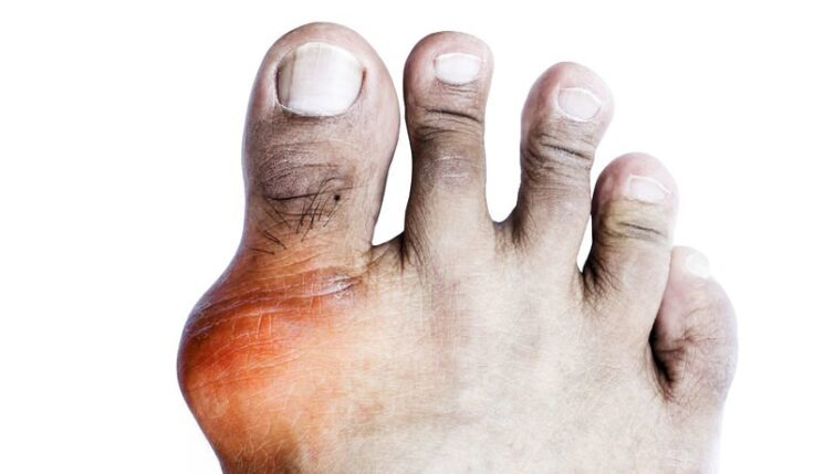 Gout commonly effects the big toe