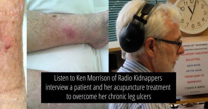 Leg ulcers radio show