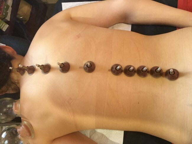Moxibustion for the spine