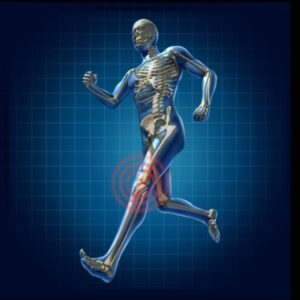 Runners can be prone to piriformis syndrome nd acupuncture may help