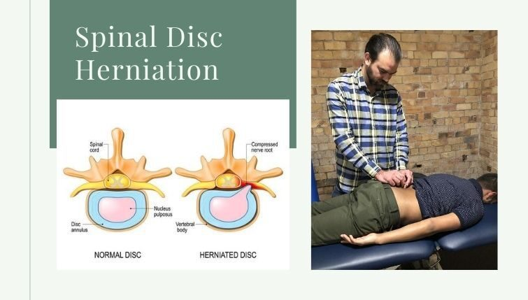 the-acupuncture-clinic-herniated-disc
