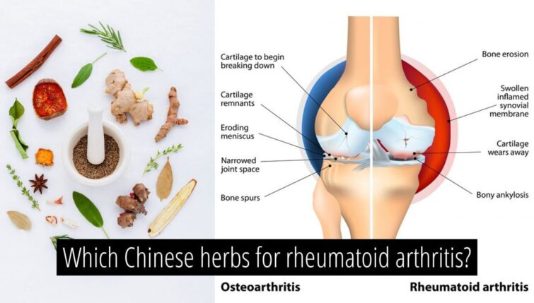Which-Chinese-herbs-for-Rheumatoid- Arthritis