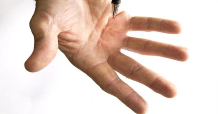 Acupuncture for Dupuytrens Contracture