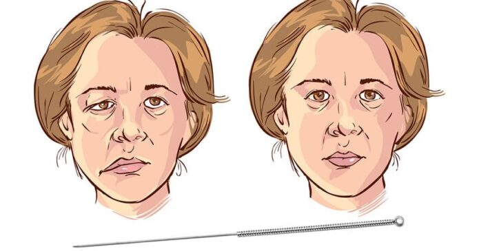 acupuncture-for-Bells-palsy
