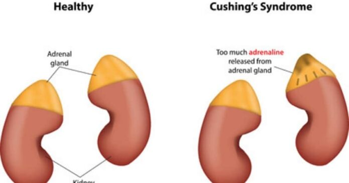 Acupuncture for Cushing's Syndrome