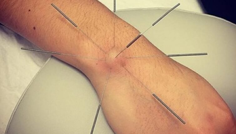 Acupuncture for Ganglion Cysts | The Acupuncture Clinic