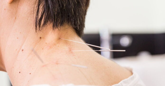 acupuncture in the neck