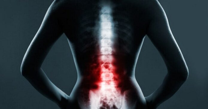 Acupuncture for the Spine