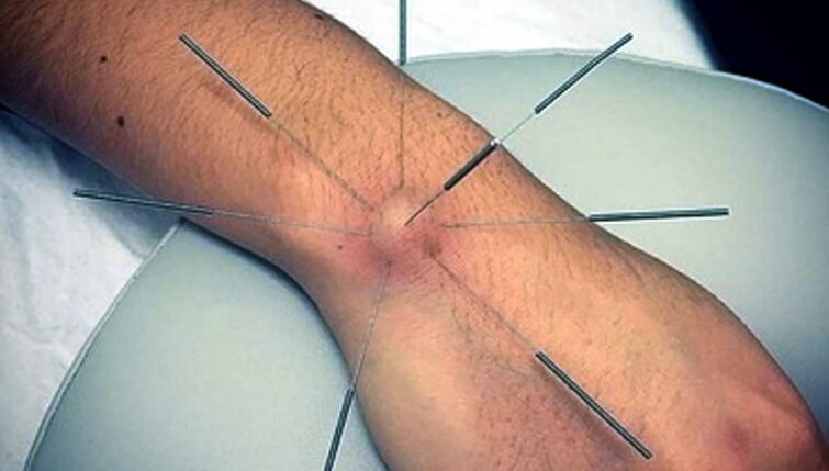 Acupuncture for Ganglion Cysts