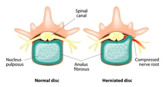 Acupuncture Treatment for Herniated Disc