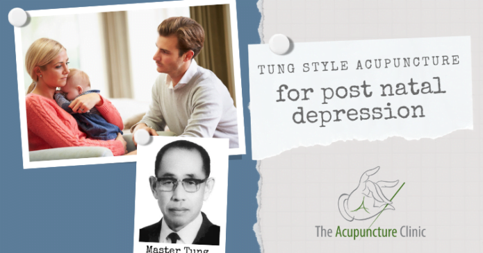 Tung-Style-Acupuncture-for-post-natal-depression