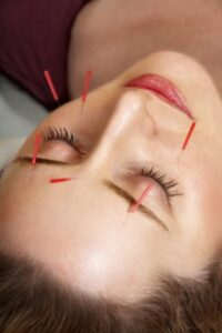 Acupuncture for Sinus